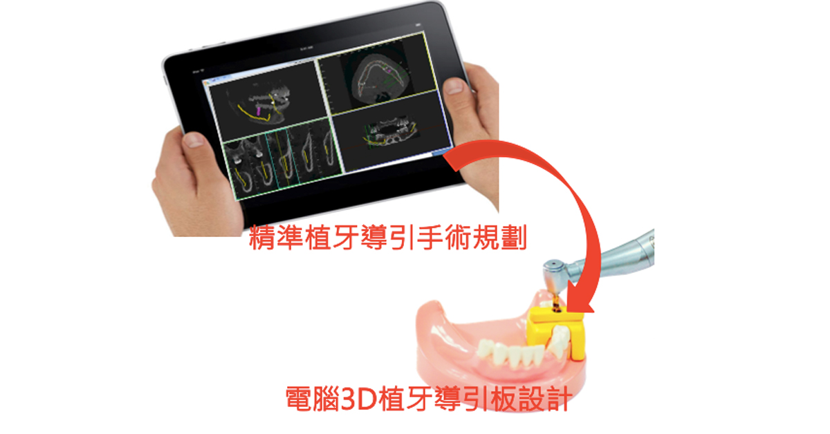 Minimally-Invasive-surgical-guide_1200