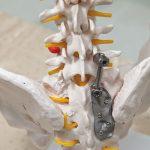 積層出美好的未來 3D列印醫材技術飛升